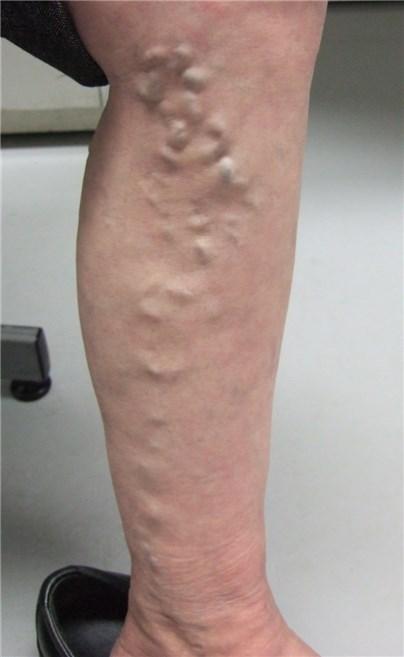 静脈 失敗 手術 下肢 瘤